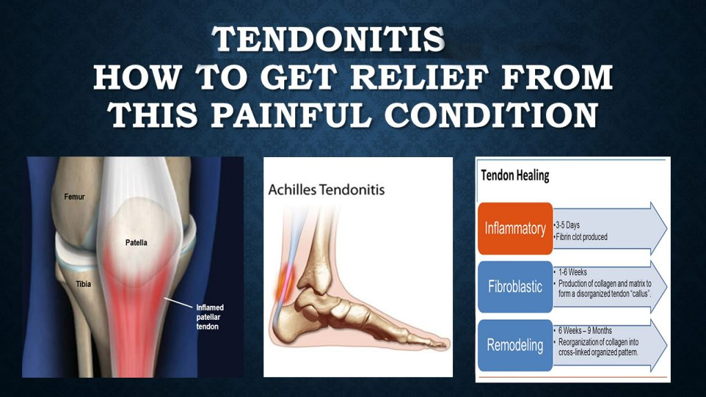 tendonitis treatment