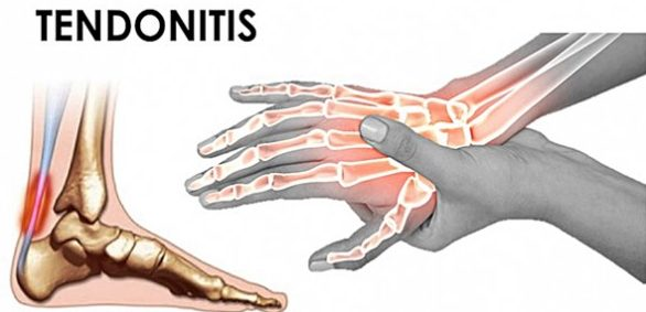 what causes tendonitis